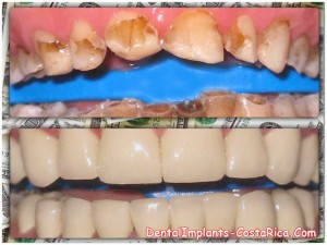 Cost of Dental Bridges