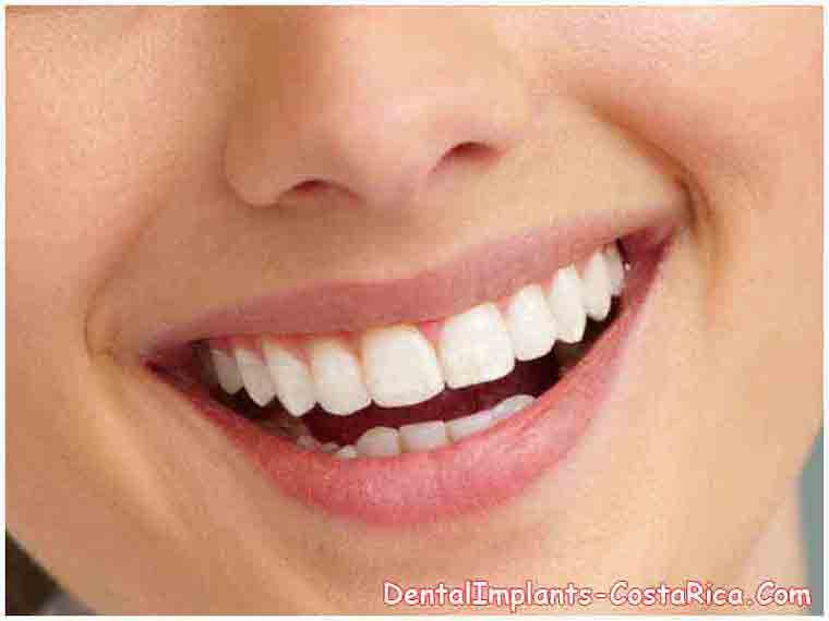 client-after-dental-implant-in-costa-rica