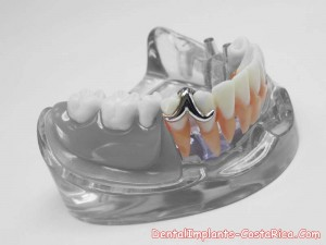 implants-and-overdentures-costa-rica