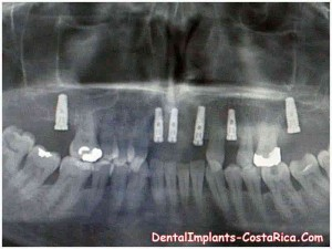 zygoma-implants-in-costa-rica
