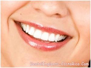 Smile Veneers vs Lumineers in Costa Rica