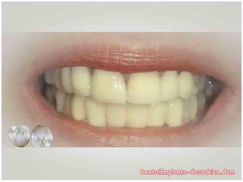 Ceramic Dental Implants Uk Best Ceramic In 2018