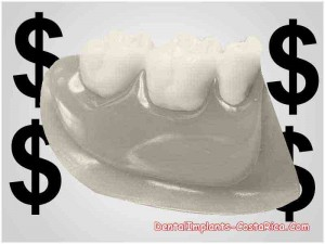 cost-of-partial-dental-plates