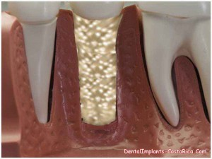 Teeth bone graft in Costa Rica