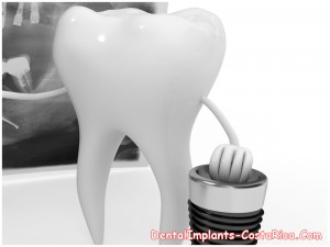 Dental Implant Packages for Costa Rica