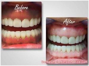 Gum depigmentation in Costa Rica