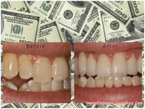 Cost of dental veneers in Costa Rica