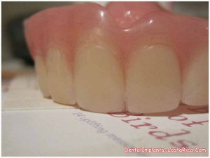 Fixed dentures in San Jose - Costa Rica