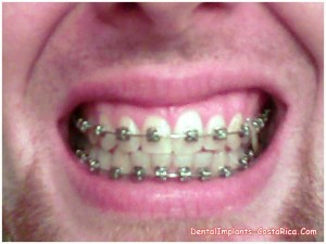 An Accelerated-orthodontics Patient