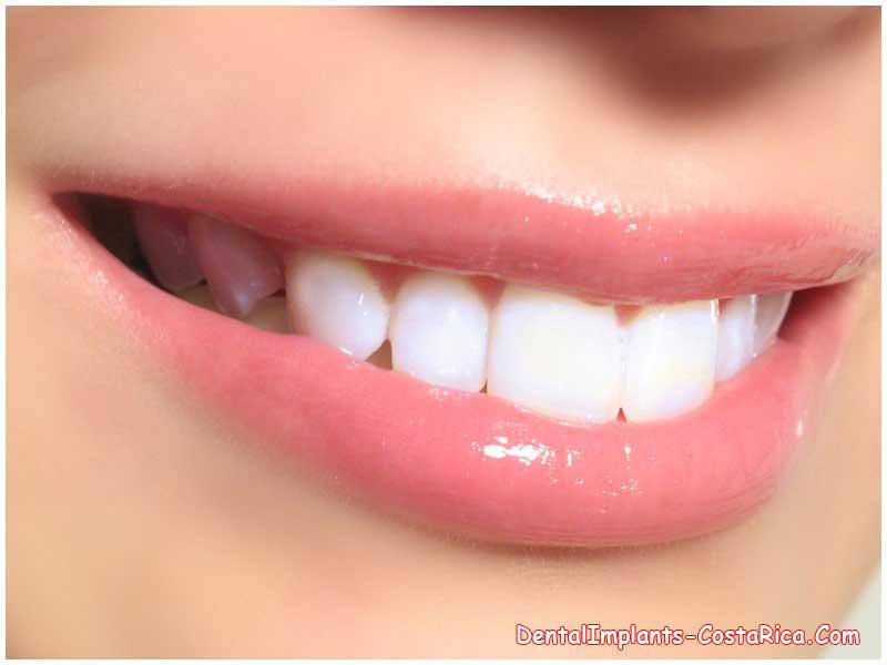 Dental Bleaching In Costa Rica Teeth Whitening Cost Dental