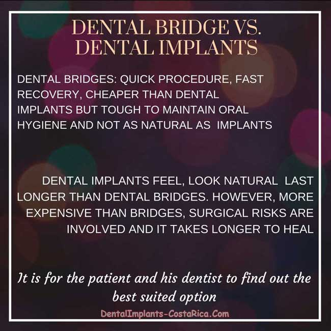 Dental Bridges vs. Dental Implants