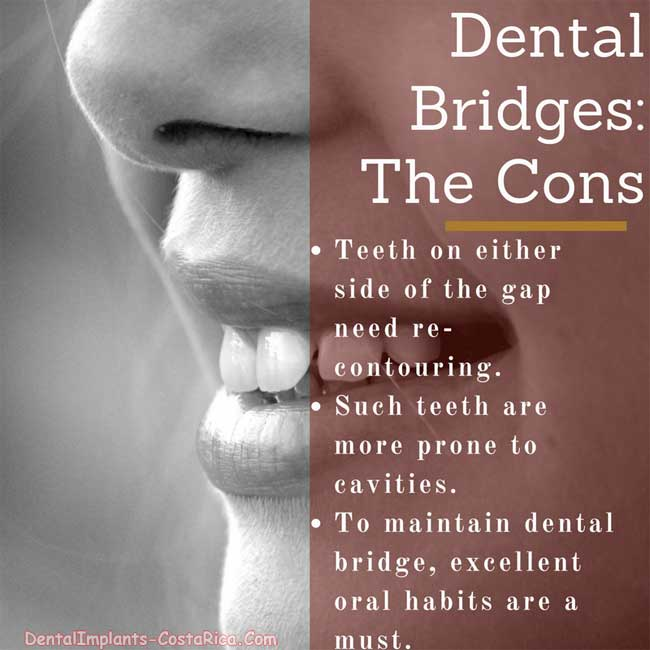 Dental Bridges Disadvantages