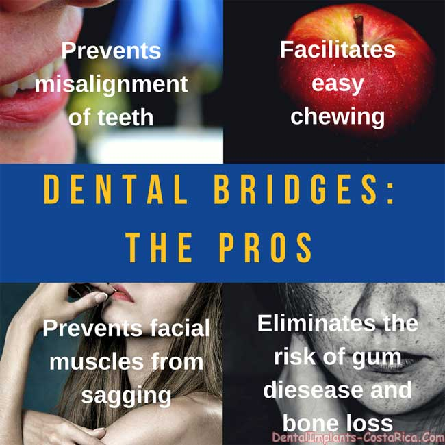 Dental Bridges Advantages