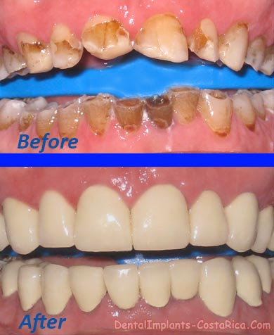 Full Mouth Restoration in Costa Rica