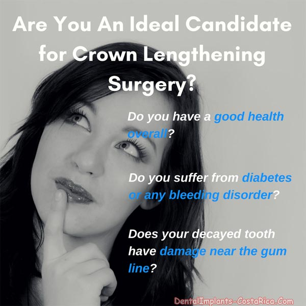 ideal-candidate-for crown-lengthening