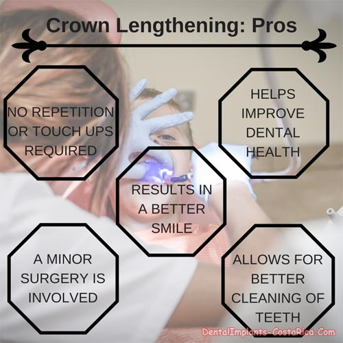 crown lengthening advantages