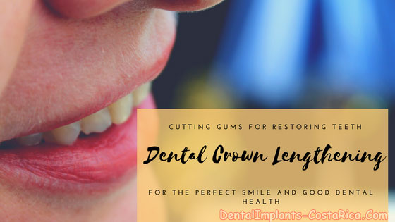 dental crown lengthening in costa rica
