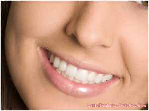 Porcelain veneers in San Jose - Costa Rica