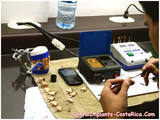 In-house Dental Lab in a Clinic in Costa Rica