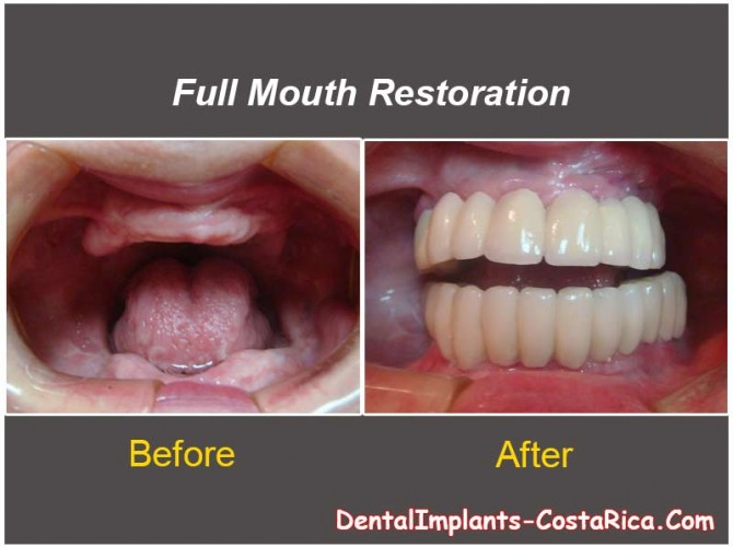 Full Mouth Restoration - Before and After Dental Treatment