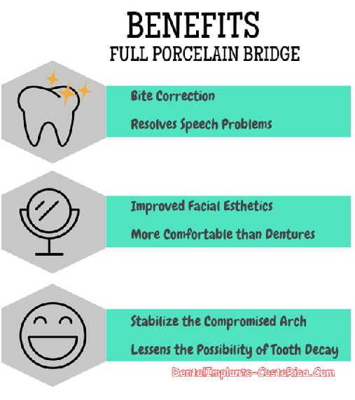Benefits of Full Porcelain Bridge