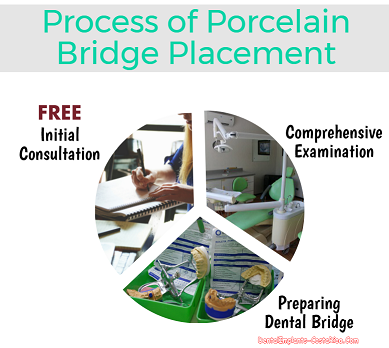 Process of Porcelain Bridge Placement