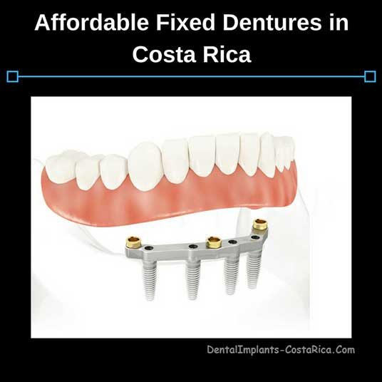 affordable-fixed-dentures-in-costa-rica