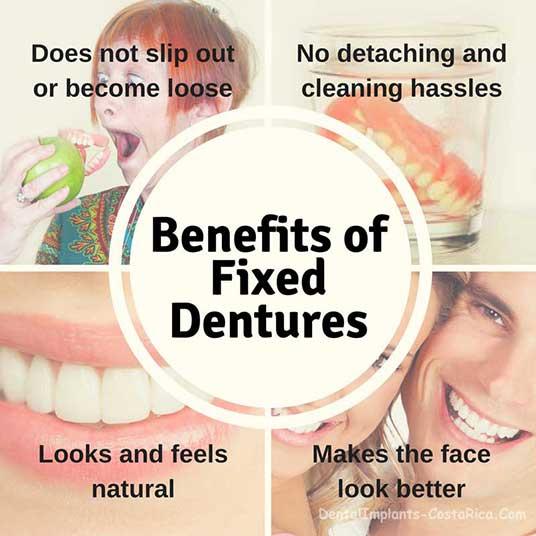 benefits-of-fixed-dentures